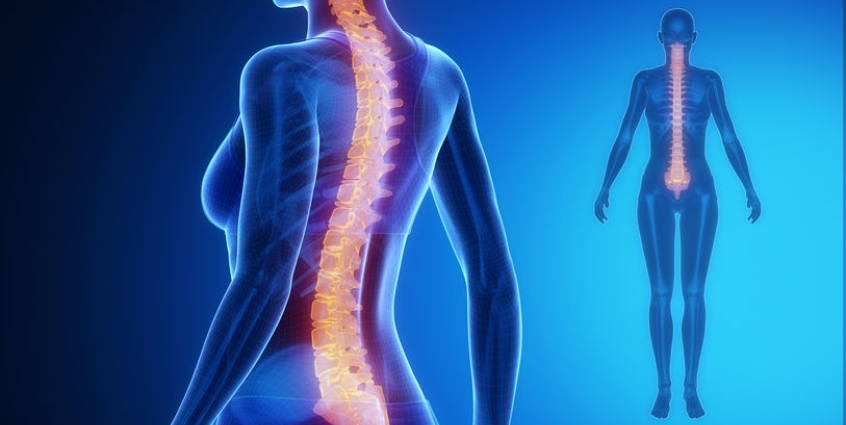 All About Scoliosis: Causes, Signs, Treatment